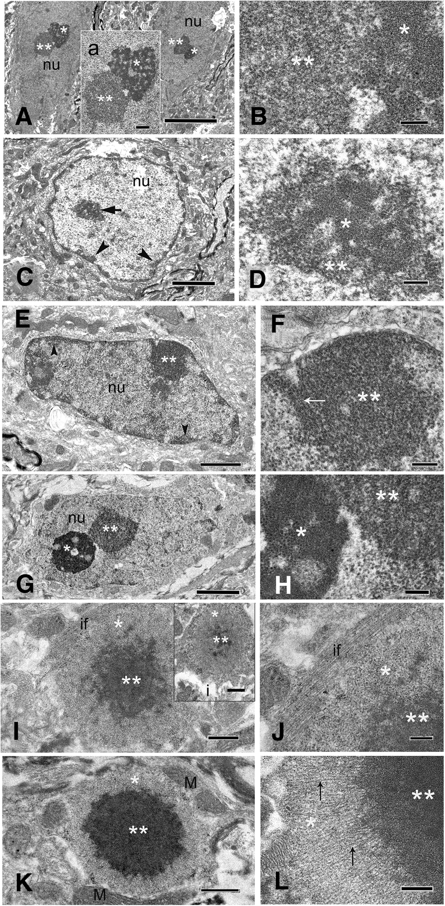 Astroglial-targeted expression of the fragile X CGG repeat