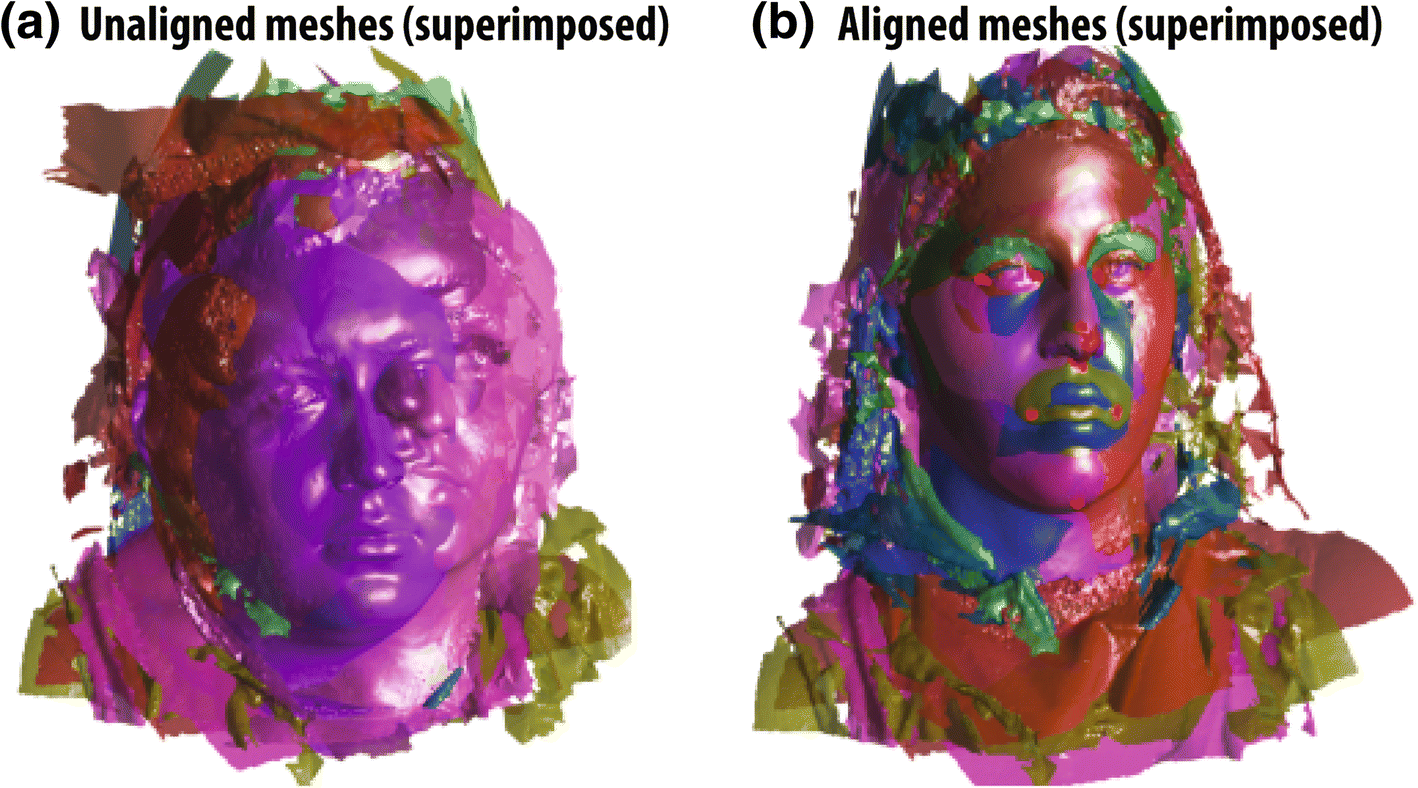Three-dimensional soft tissue analysis of the face following