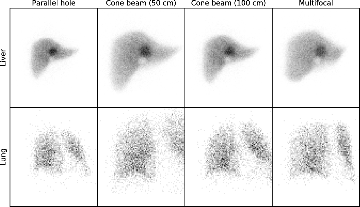 Fast quantitative reconstruction with focusing collimators