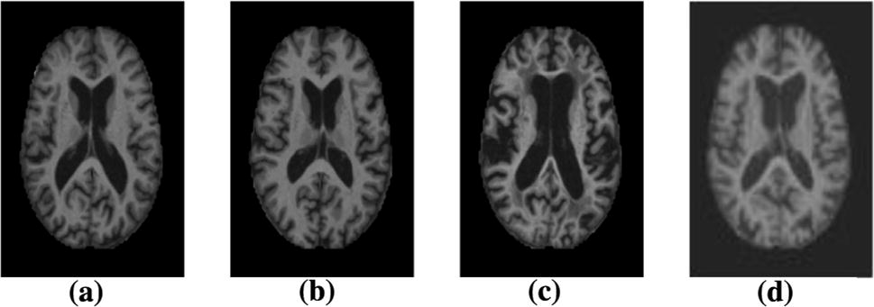Brain MRI analysis for Alzheimer's disease diagnosis using