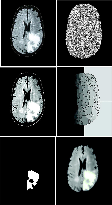 Two-step verification of brain tumor segmentation using