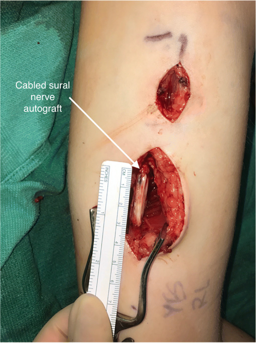 symptoms after nexplanon removal