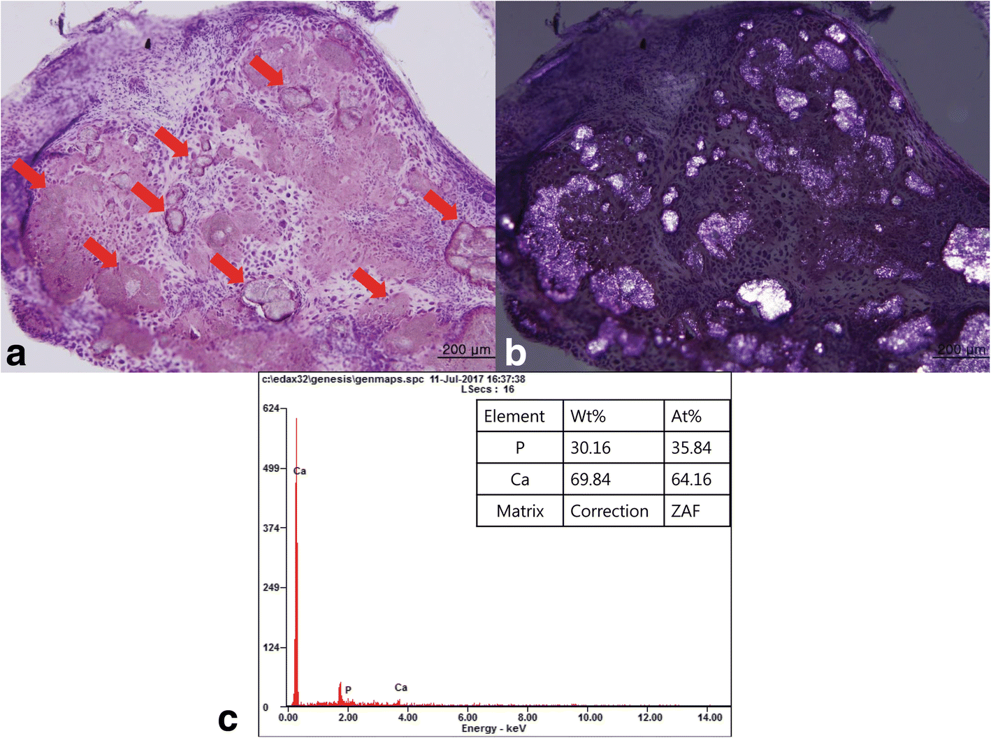 Calcium pyrophosphate dihydrate deposition disease in the
