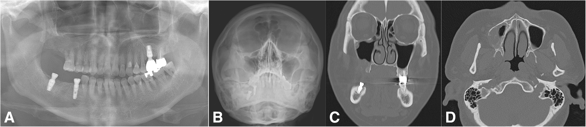 Definition and management of odontogenic maxillary sinusitis
