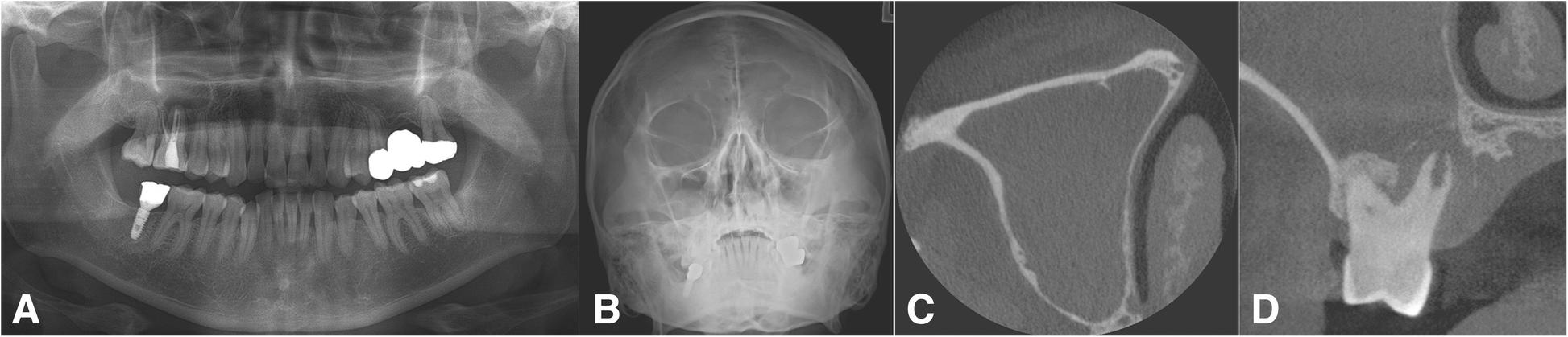 Definition and management of odontogenic maxillary sinusitis