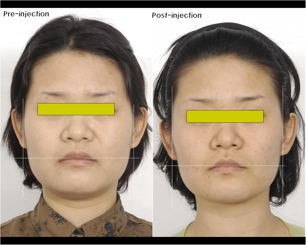 Application of botulinum toxin in maxillofacial field: part