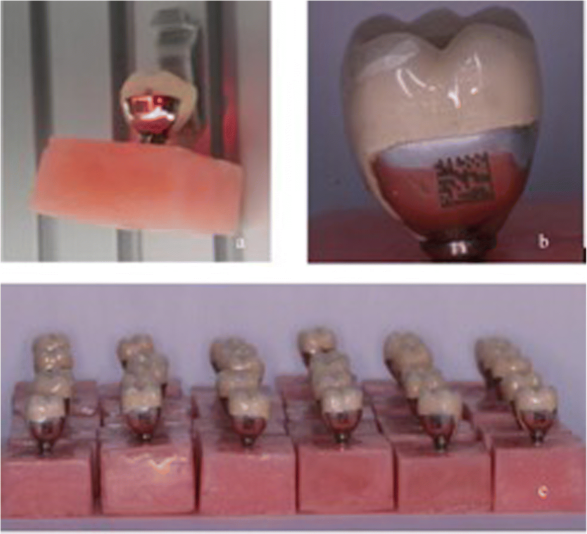 Implementation of a prosthetic labelling process in implant