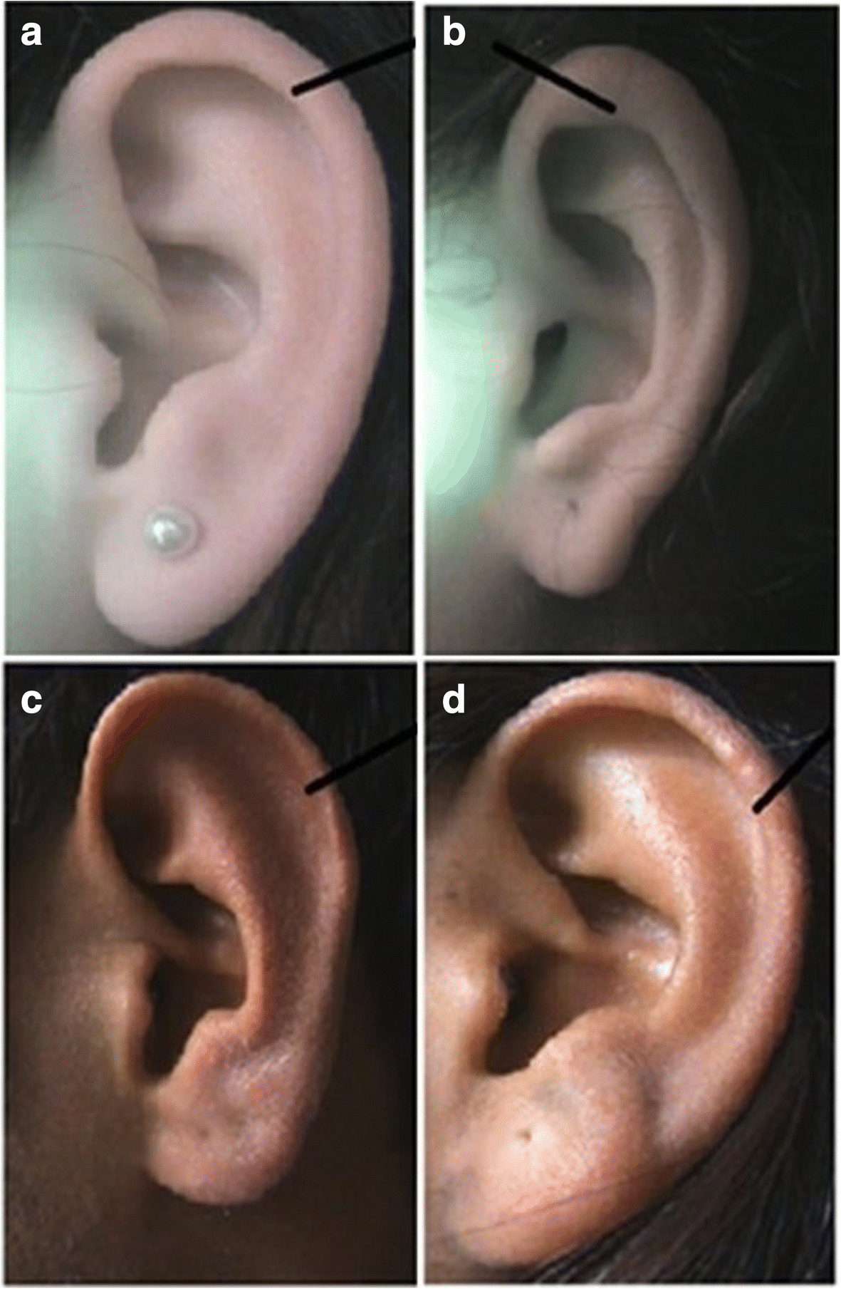 A study of morphological variations of the human ear for its