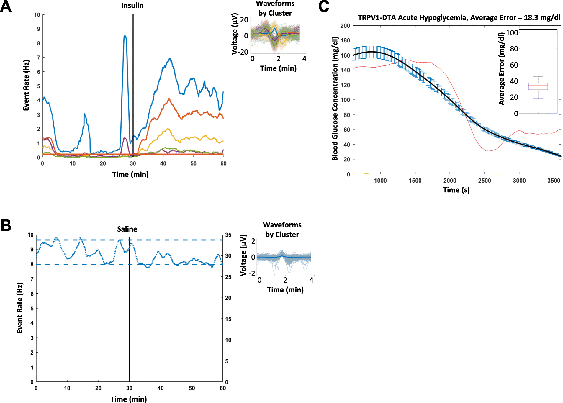 Identification of hypoglycemia-specific neural signals by