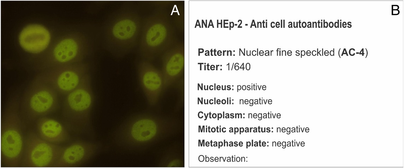 V Brazilian consensus guidelines for detection of anti-cell