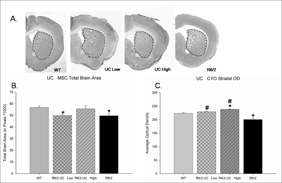 Transplantation Of Umbilical Cord Derived Mesenchymal Stem Cells