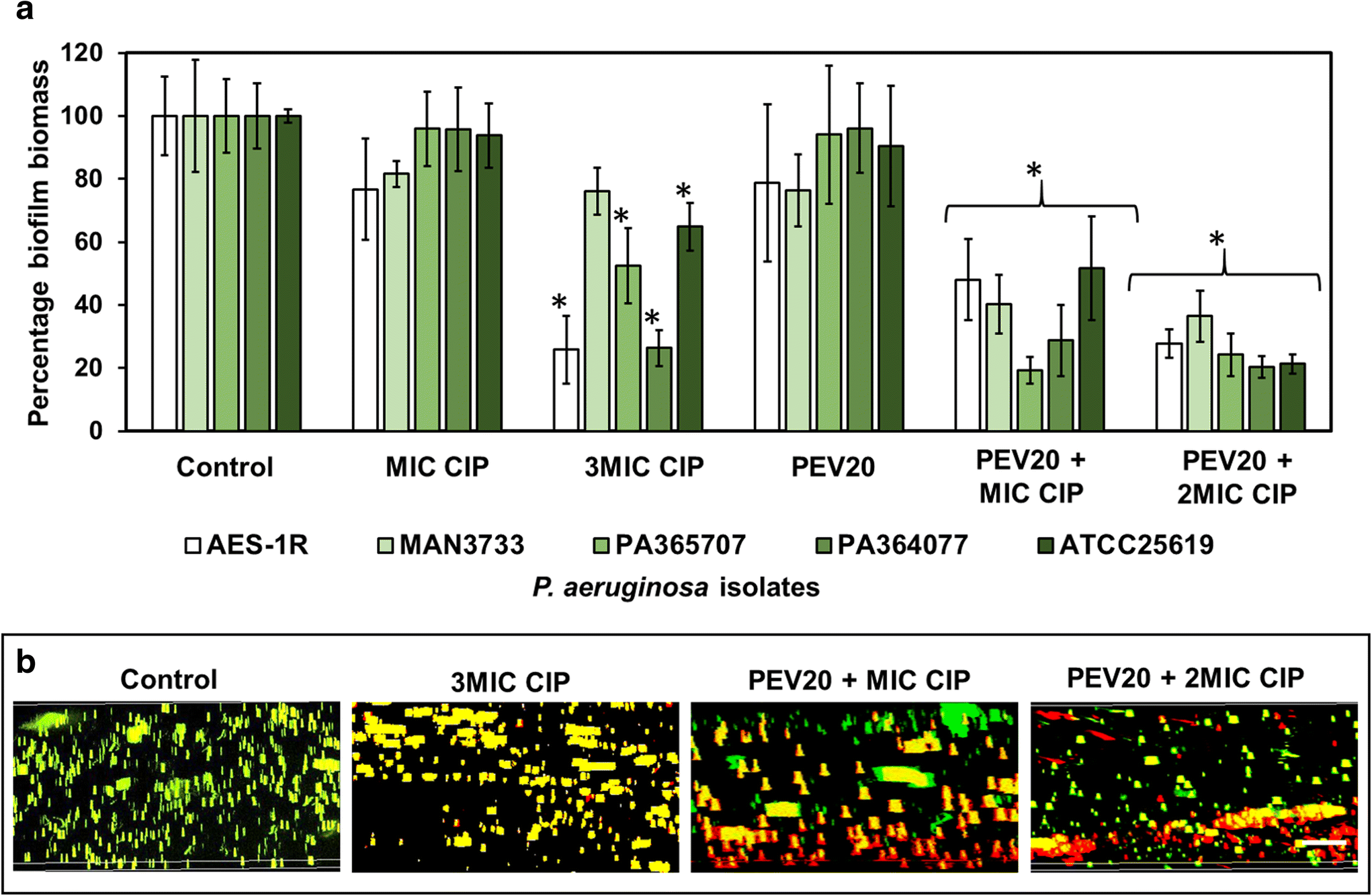 Bacteriophage PEV20 and Ciprofloxacin Combination Treatment