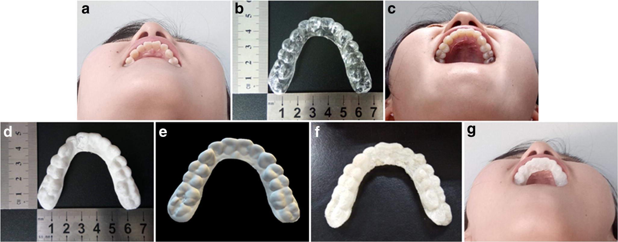 3D-Printed Wearable Personalized Orthodontic Retainers for