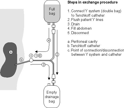 Peritoneal Dialysis Springerlink