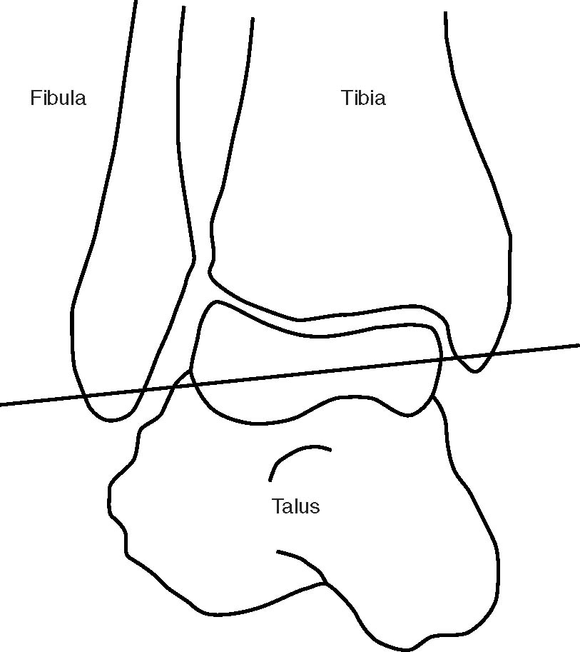 Mechanical Contributions To Chronic Lateral Ankle Instability