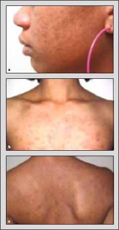 Eosinophilic Folliculitis In Hiv Infected Women Springerlink