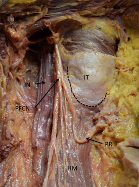 Entrapment of the posterior femoral cutaneous nerve and ...