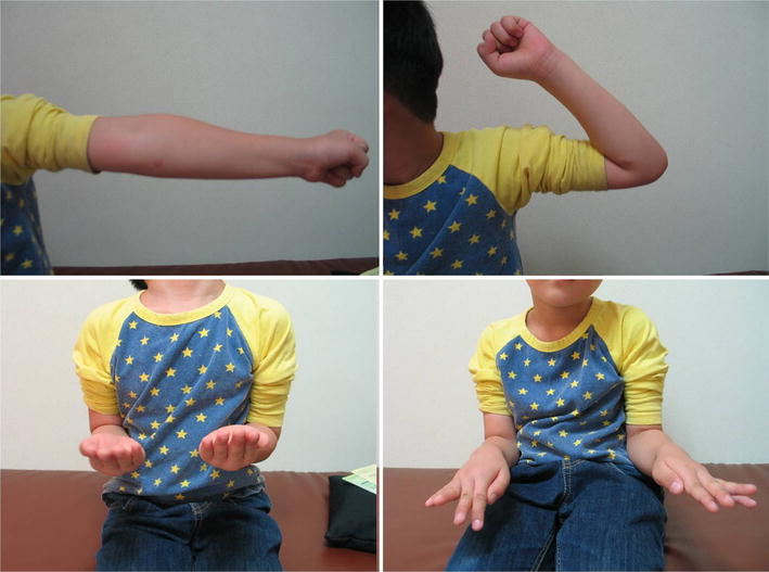 Proximal Radioulnar Translocation Associated With Elbow ...