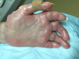 Management of Calcinosis Associated with Systemic ...