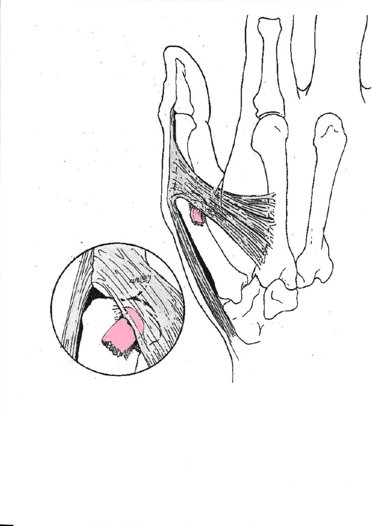 Rupture Of The Ulnar Collateral Ligament Of The Thumb  U2013 A