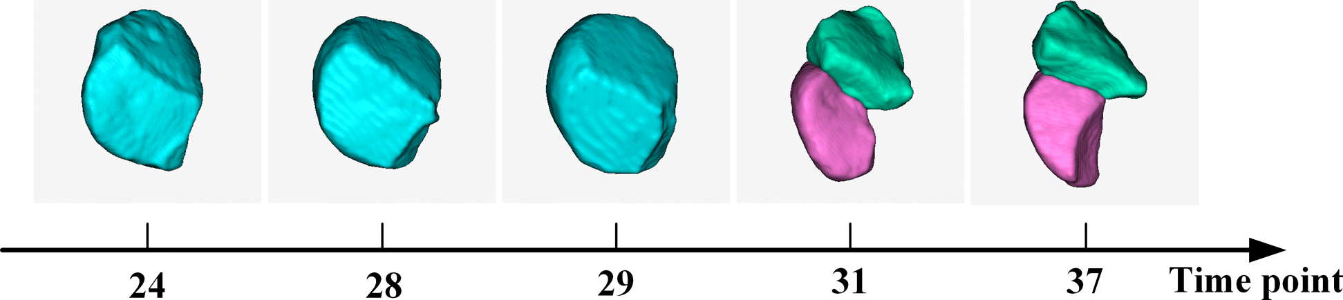 3dmms  Robust 3d Membrane Morphological Segmentation Of C