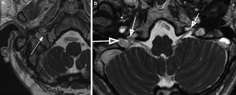 Imaging Of The Jugular Foramen Springerlink