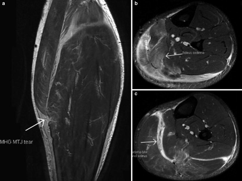 Mri Of Muscle Injuries Springerlink