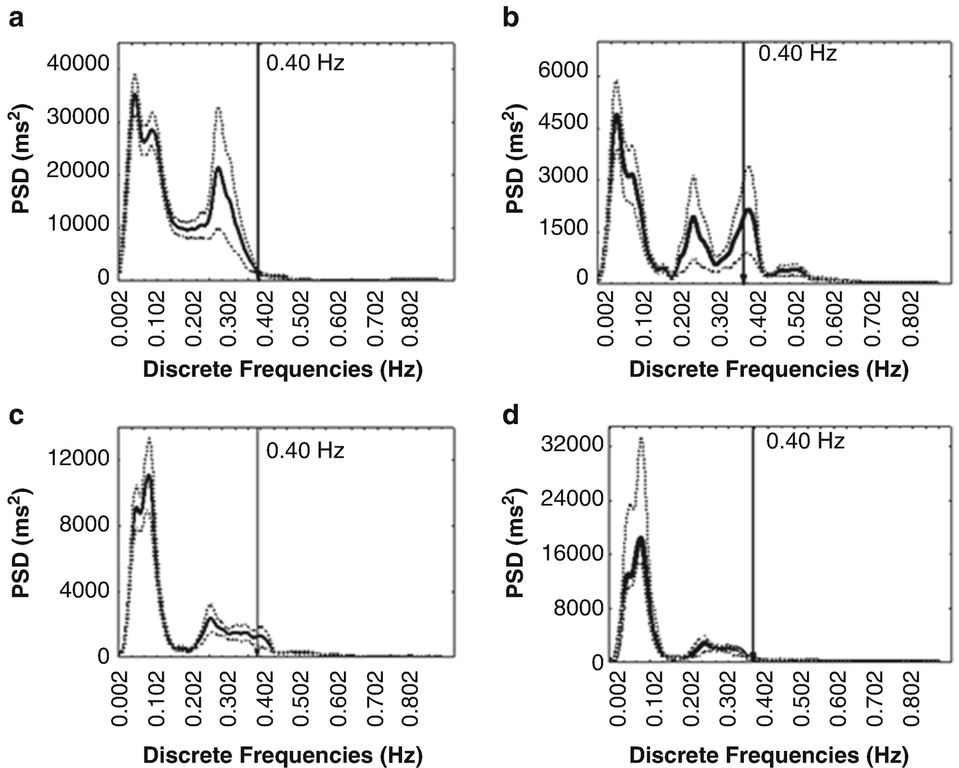 Very High Frequency Oscillations of Heart Rate Variability