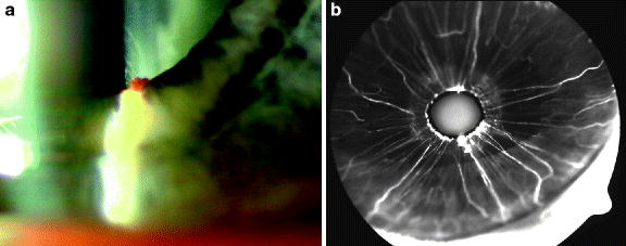 90e0af3fe5b Treatment of Proliferative Diabetic Retinopathy