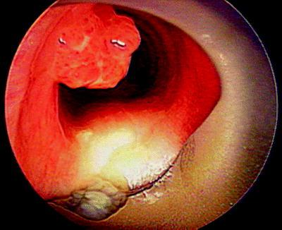 endobronchialis papillomatosis