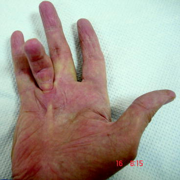 Examination of the Wrist and Hand