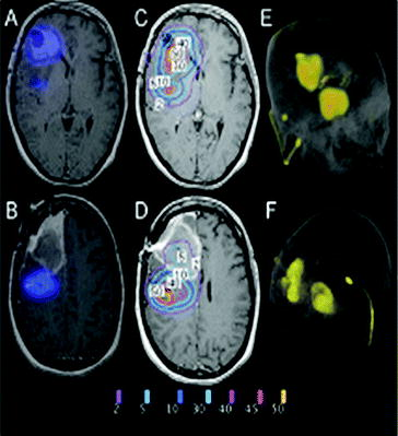 Targeted Therapies for Malignant Brain Tumors | SpringerLink