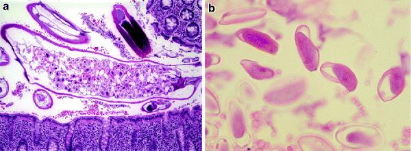 neoplasmul malign al amigdalelor pregătire pentru negi plantari
