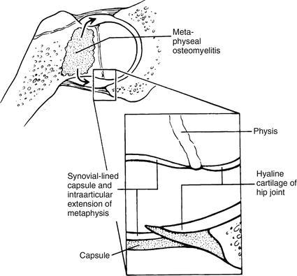 Orthopedic Infections