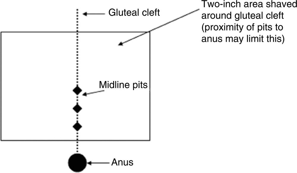 Pilonidal Disease and Hidradenitis Suppurativa   SpringerLink