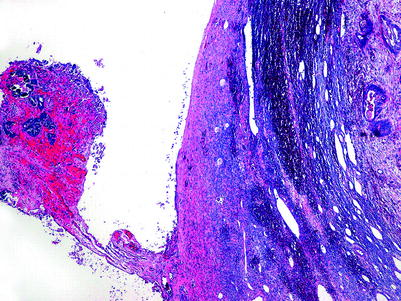Frozen Section of Ovarian Lesions | SpringerLink