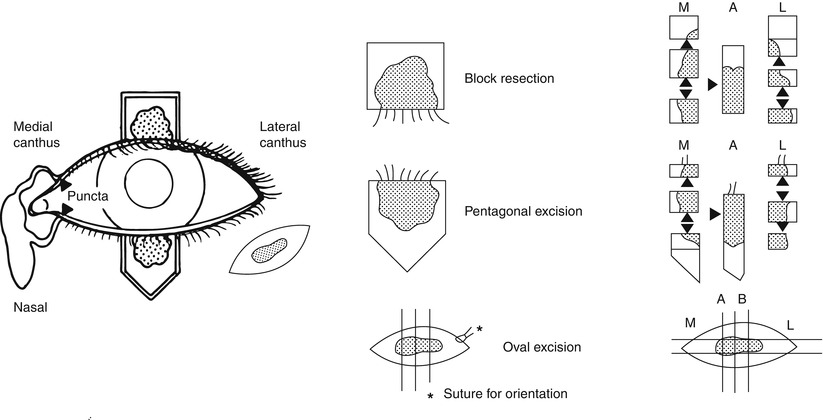 Biopsy Of The Eyelid The Lacrimal Sac And The Temporal Artery