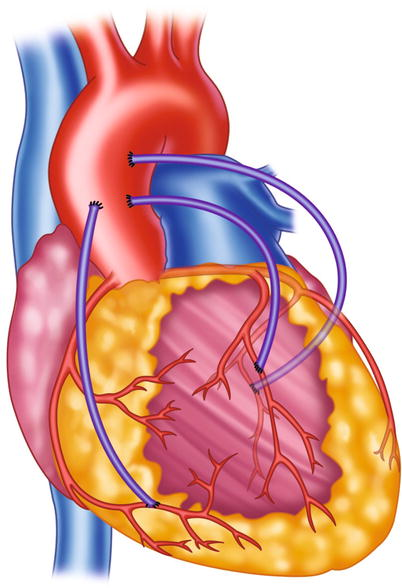 Coronary Angiography Springerlink