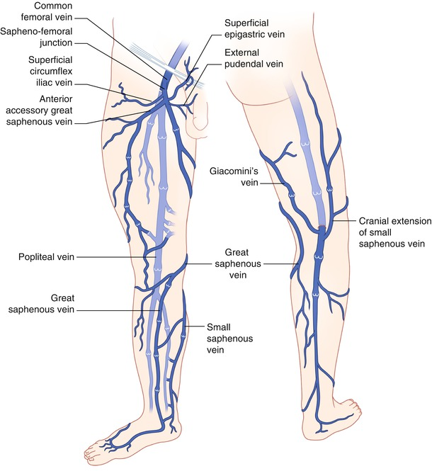 Venous Thromboembolic Disease | SpringerLink