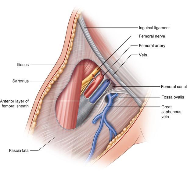 Vascular Access, Closure, and Management | SpringerLink