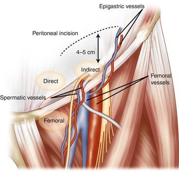Laparoscopic Inguinal Hernia Repair: TAPP | SpringerLink