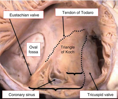 Anatomy And Physiology Of The Atrioventricular Node What Do We Know