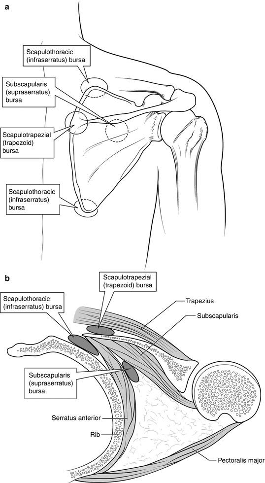 Scapulothoracic Disorders   SpringerLink