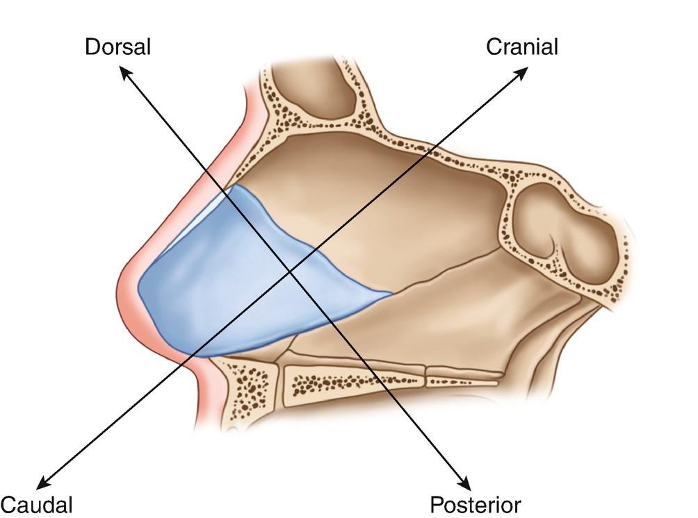 Deformities Of The Nasal Septum Springerlink