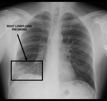 diffuse patchy airspace disease