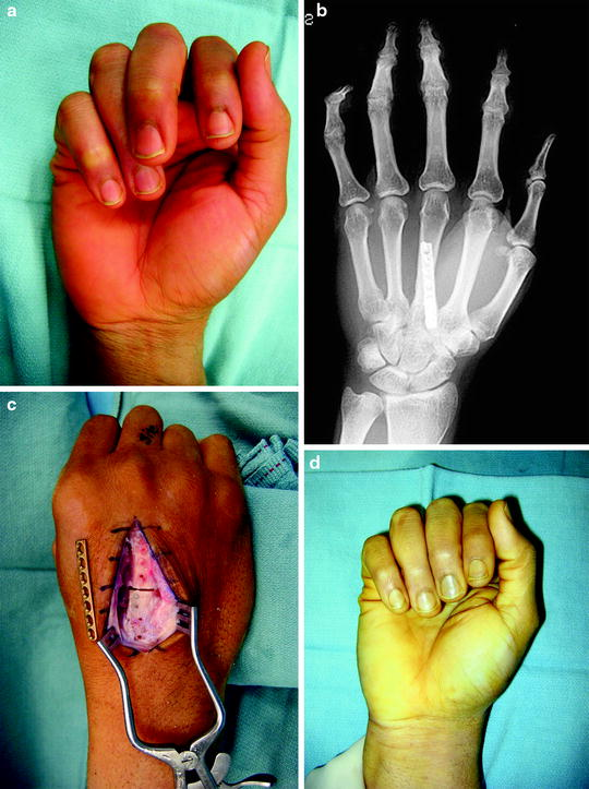 Reoperative Phalangeal and Metacarpal Fracture Management | SpringerLink