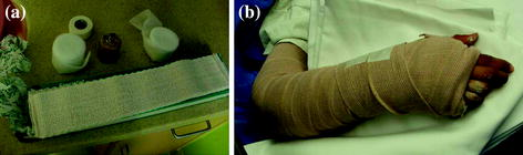 Casts, Splints, and Braces | SpringerLink