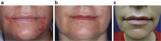 Perioral Dermatitis | SpringerLink