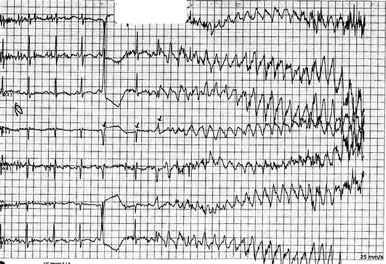 Drug-Induced QT Prolongation   SpringerLink