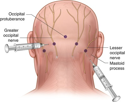 Billedresultat for greater occipital neurons